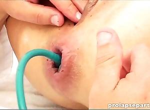 Anal prolapsing onwards gynecologist